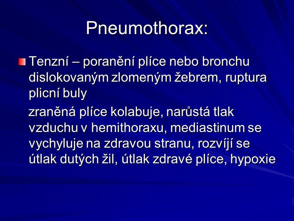 Pneumothorax: Tenzní – poranění plíce nebo bronchu dislokovaným zlomeným žebrem, ruptura plicní buly.