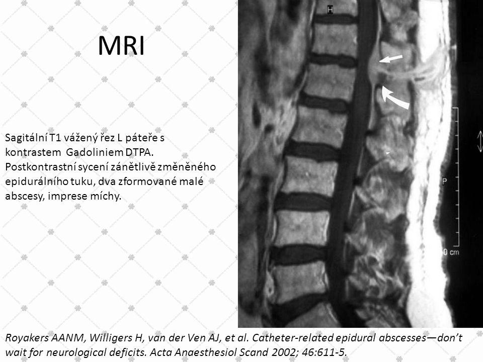 MRI Sagitální T1 vážený řez L páteře s kontrastem Gadoliniem DTPA.