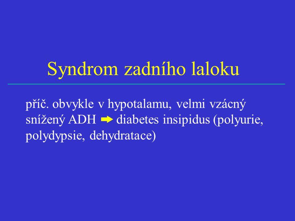 Syndrom zadního laloku