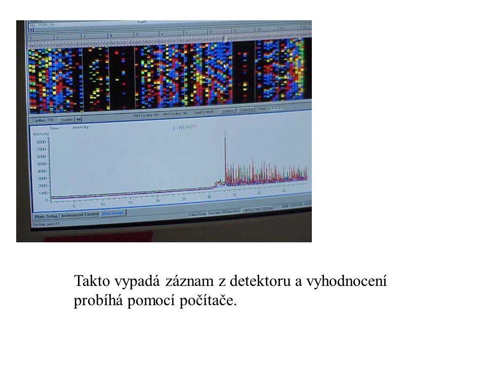 Takto vypadá záznam z detektoru a vyhodnocení probíhá pomocí počítače.