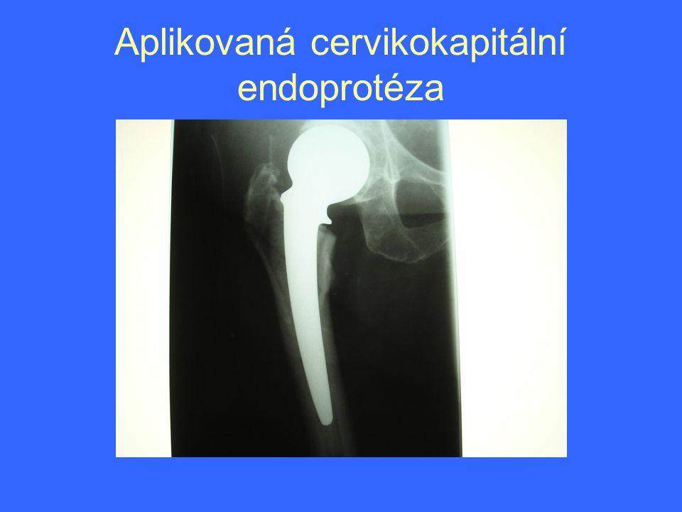 Aplikovaná cervikokapitální endoprotéza