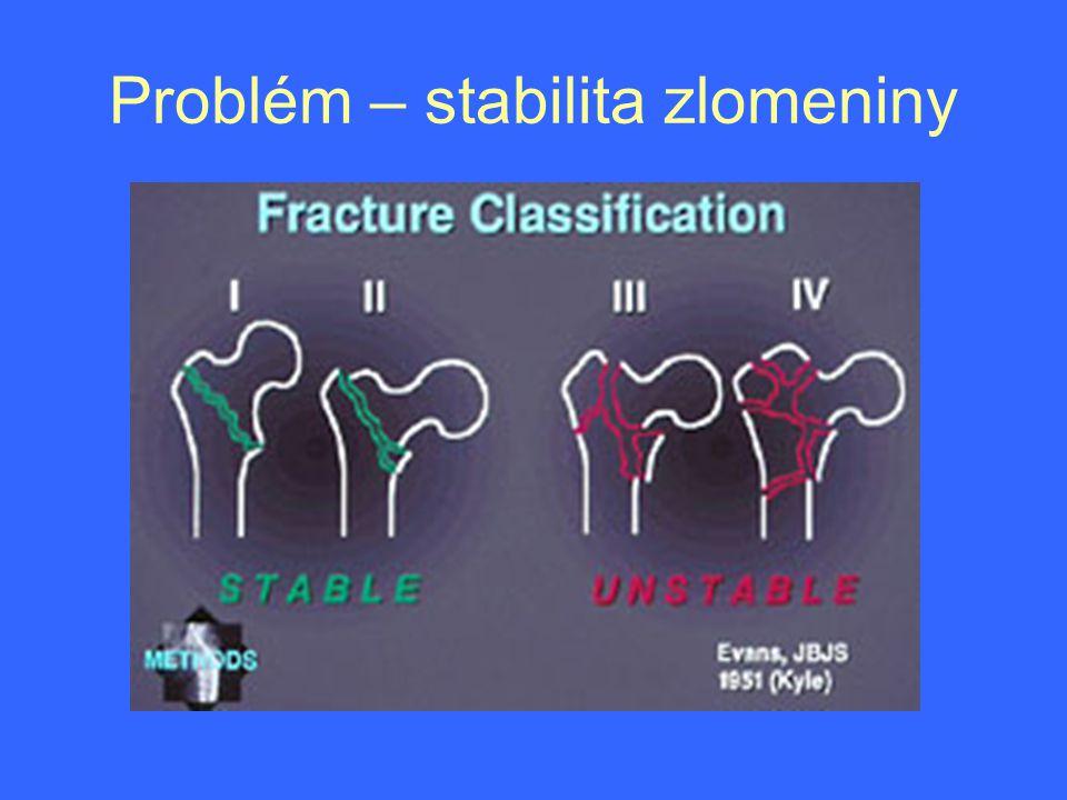 Problém – stabilita zlomeniny