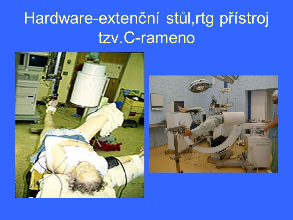 Hardware-extenční stůl,rtg přístroj tzv.C-rameno