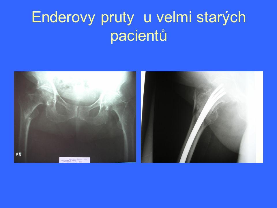 Enderovy pruty u velmi starých pacientů