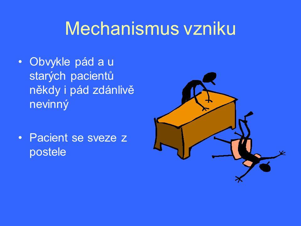 Mechanismus vzniku Obvykle pád a u starých pacientů někdy i pád zdánlivě nevinný.