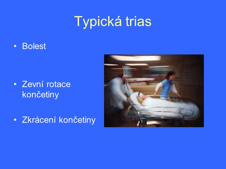 Typická trias Bolest Zevní rotace končetiny Zkrácení končetiny