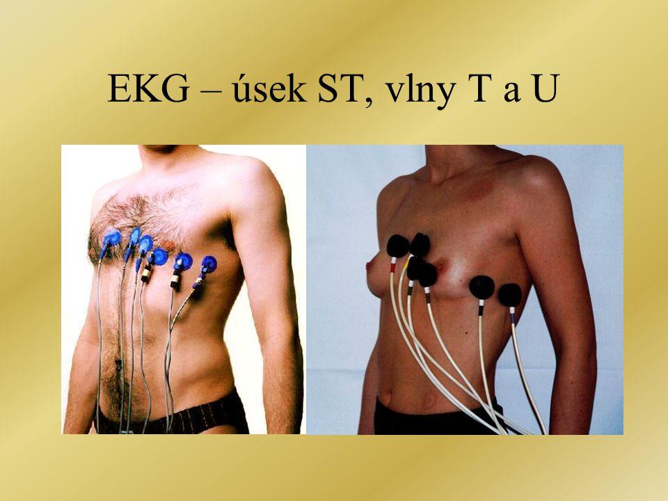 EKG – úsek ST, vlny T a U