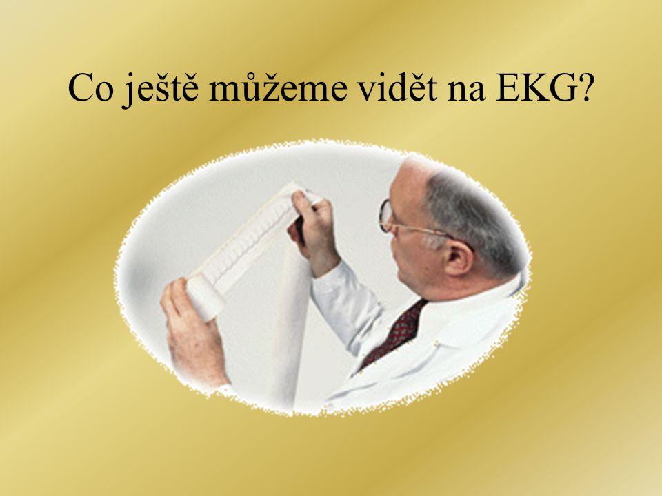 Co ještě můžeme vidět na EKG