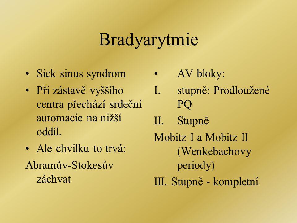 Bradyarytmie Sick sinus syndrom