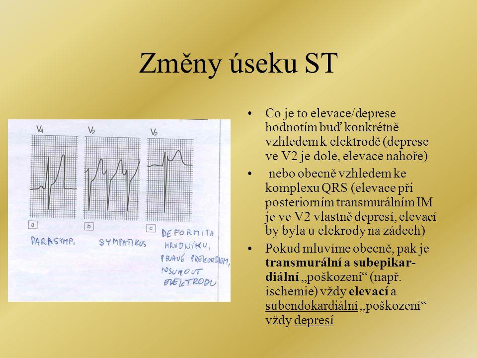 Změny úseku ST Co je to elevace/deprese hodnotím buď konkrétně vzhledem k elektrodě (deprese ve V2 je dole, elevace nahoře)