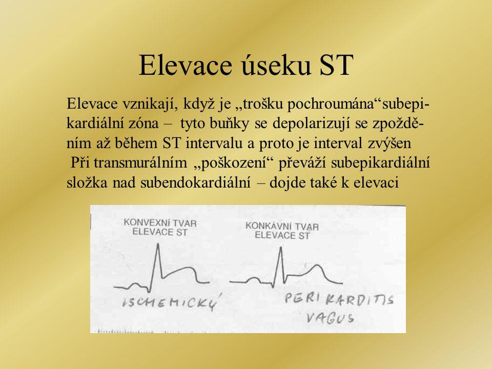 """Elevace úseku ST Elevace vznikají, když je """"trošku pochroumána subepi-"""