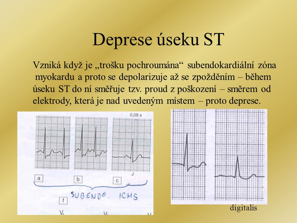 """Deprese úseku ST Vzniká když je """"trošku pochroumána subendokardiální zóna. myokardu a proto se depolarizuje až se zpožděním – během."""