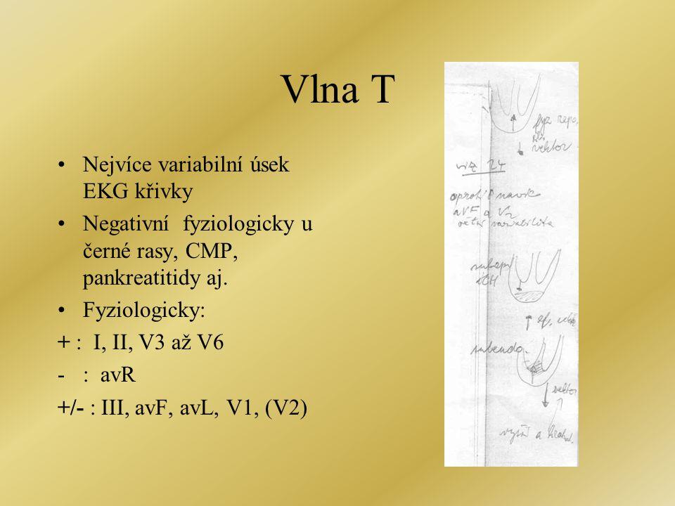 Vlna T Nejvíce variabilní úsek EKG křivky