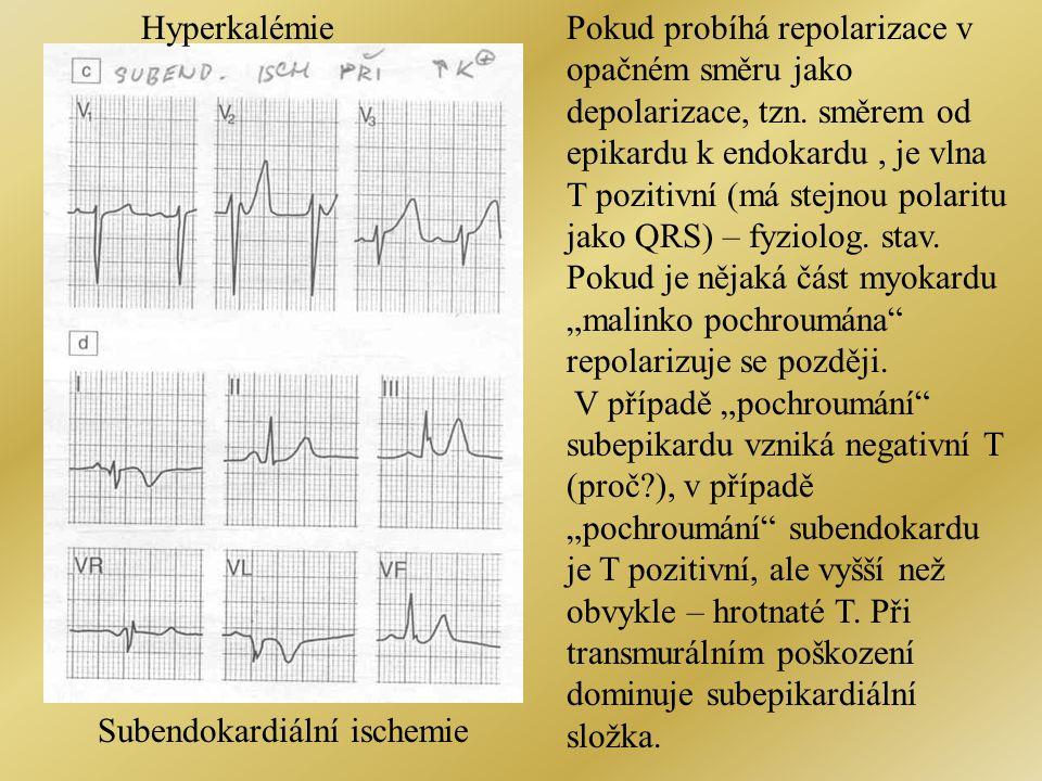Hyperkalémie