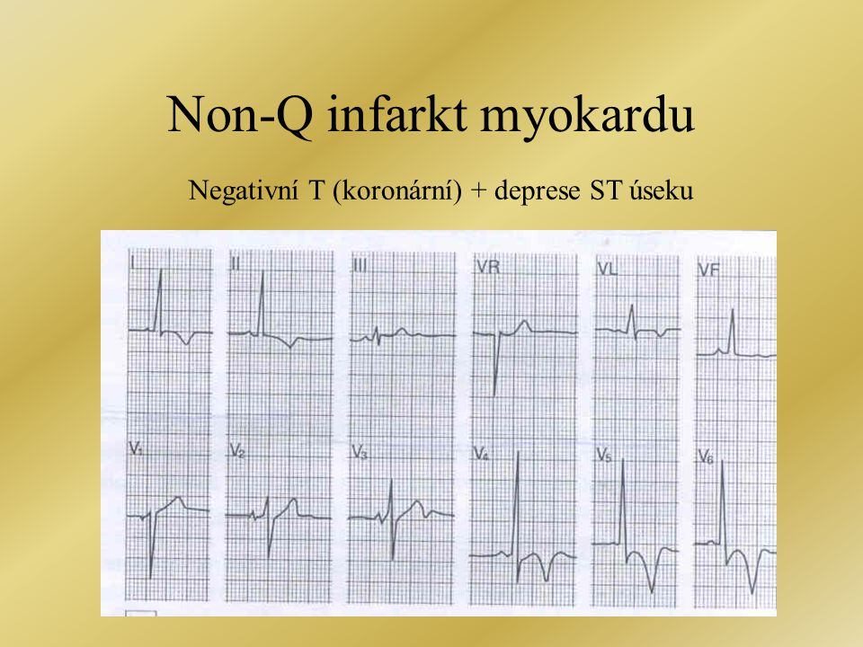 Non-Q infarkt myokardu