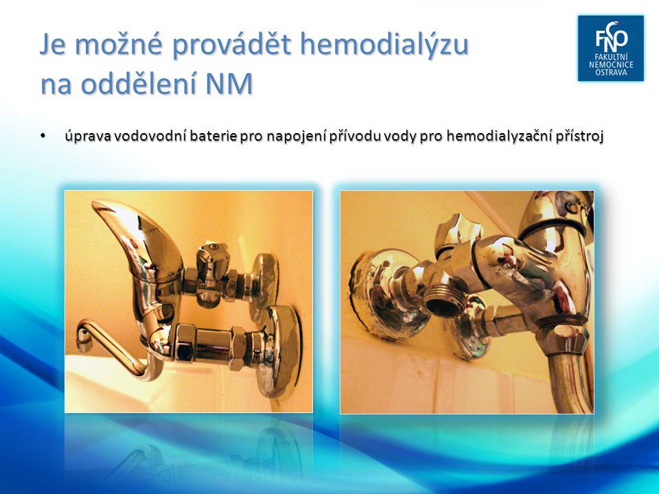 Je možné provádět hemodialýzu na oddělení NM