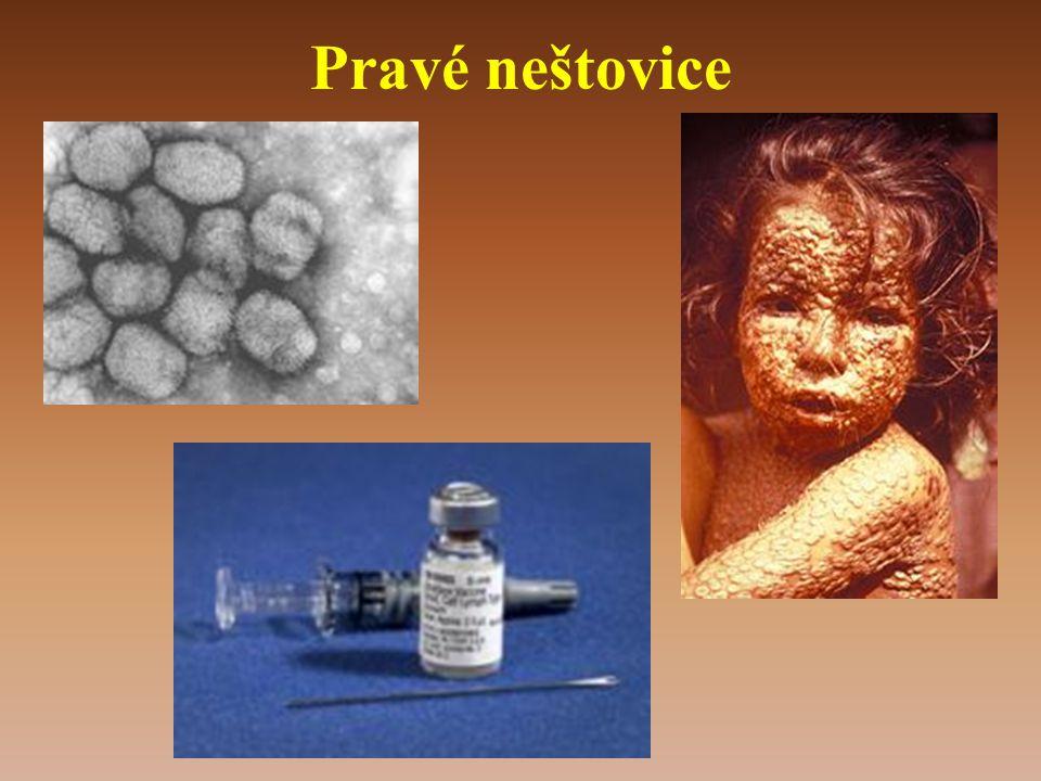 Pravé neštovice