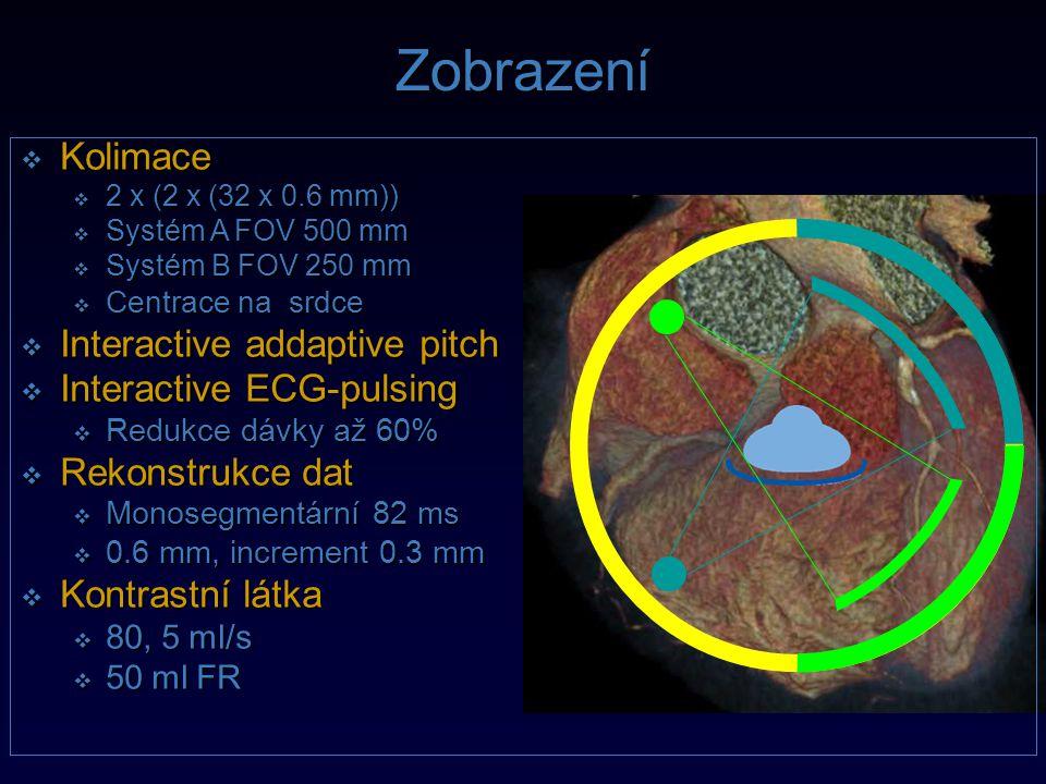 Zobrazení Kolimace Interactive addaptive pitch Interactive ECG-pulsing