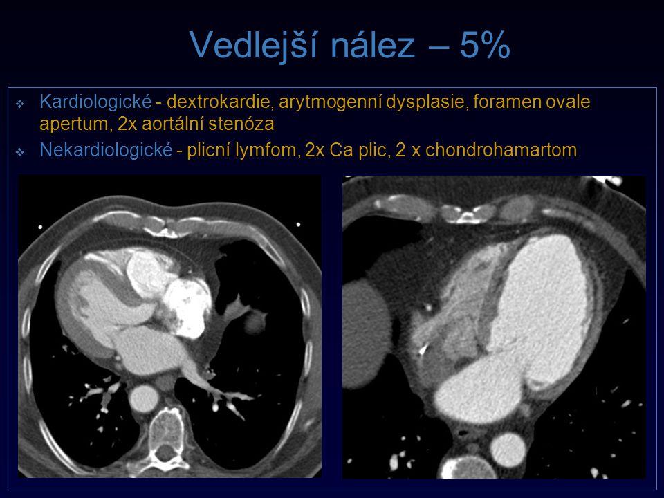 Vedlejší nález – 5% Kardiologické - dextrokardie, arytmogenní dysplasie, foramen ovale apertum, 2x aortální stenóza.