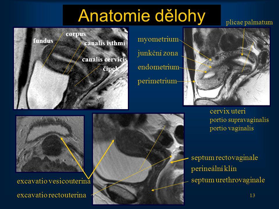 Anatomie dělohy myometrium junkční zona endometrium perimetrium