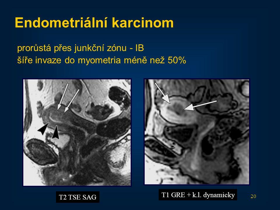 Endometriální karcinom