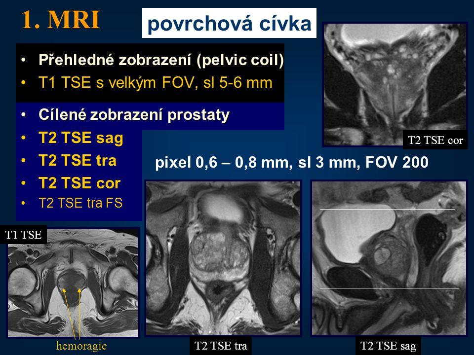 1. MRI povrchová cívka Přehledné zobrazení (pelvic coil)