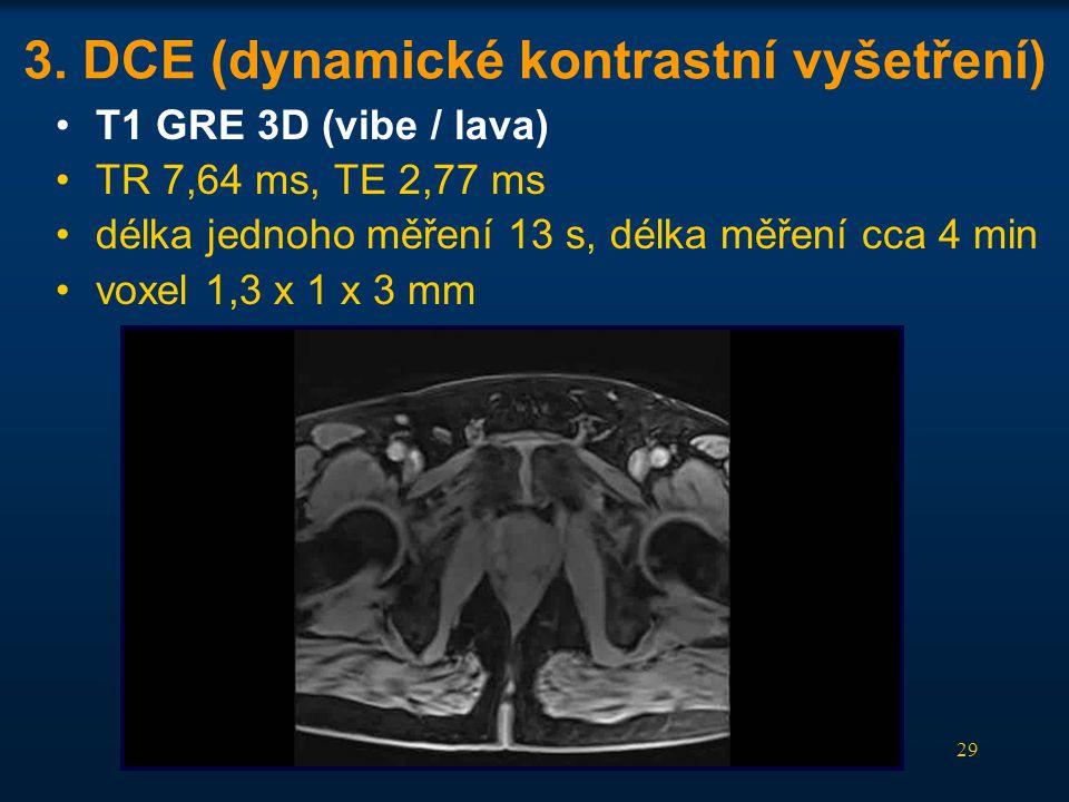3. DCE (dynamické kontrastní vyšetření)