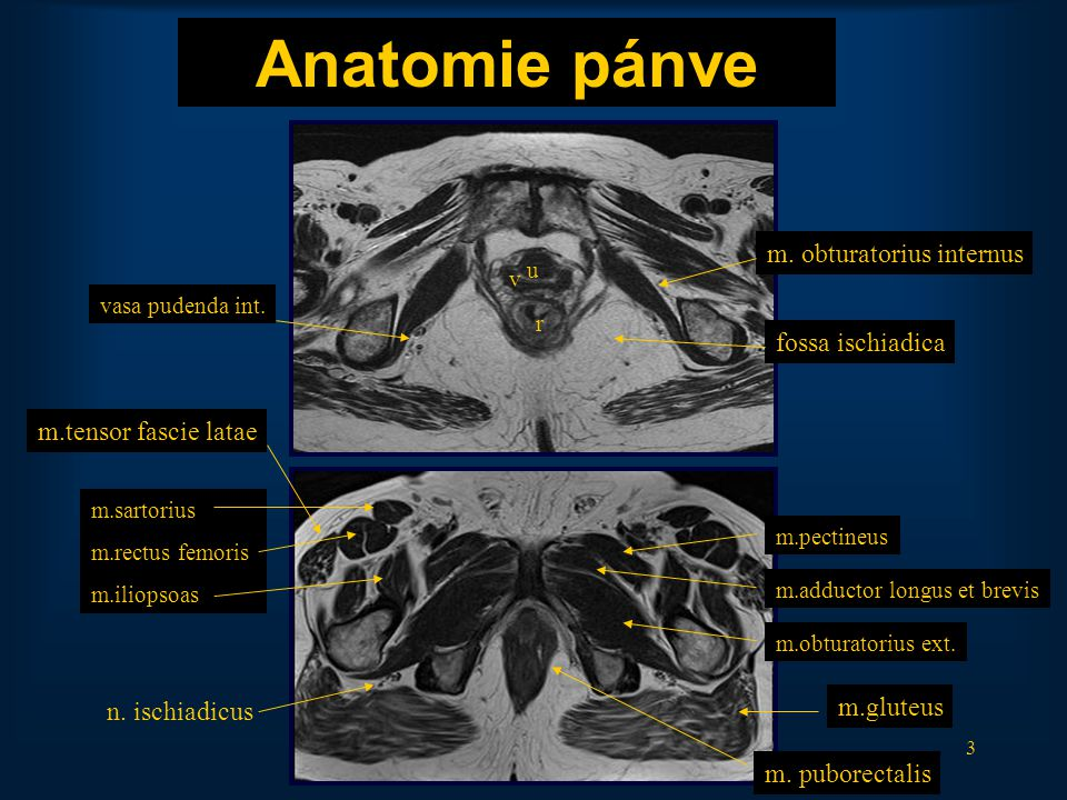 Anatomie pánve m. obturatorius internus fossa ischiadica