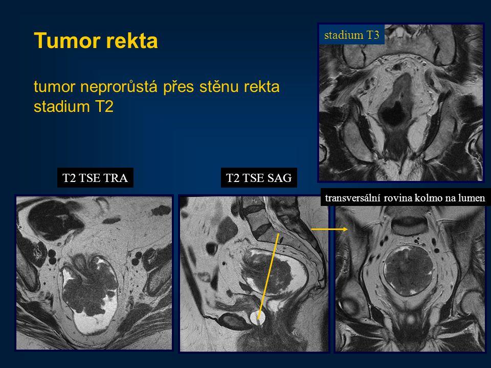 Tumor rekta tumor neprorůstá přes stěnu rekta stadium T2 stadium T3