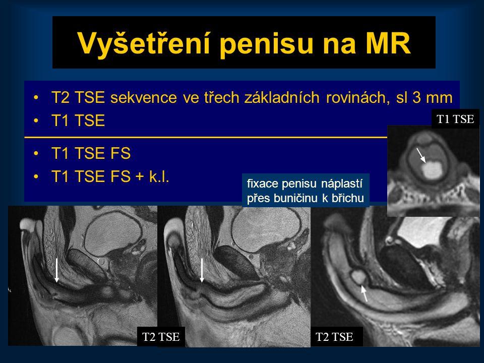 Vyšetření penisu na MR T2 TSE sekvence ve třech základních rovinách, sl 3 mm. T1 TSE. T1 TSE FS. T1 TSE FS + k.l.