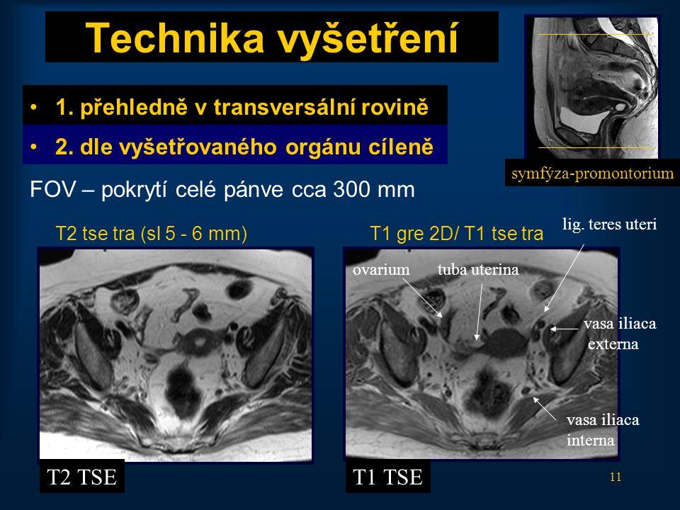 Technika vyšetření 1. přehledně v transversální rovině