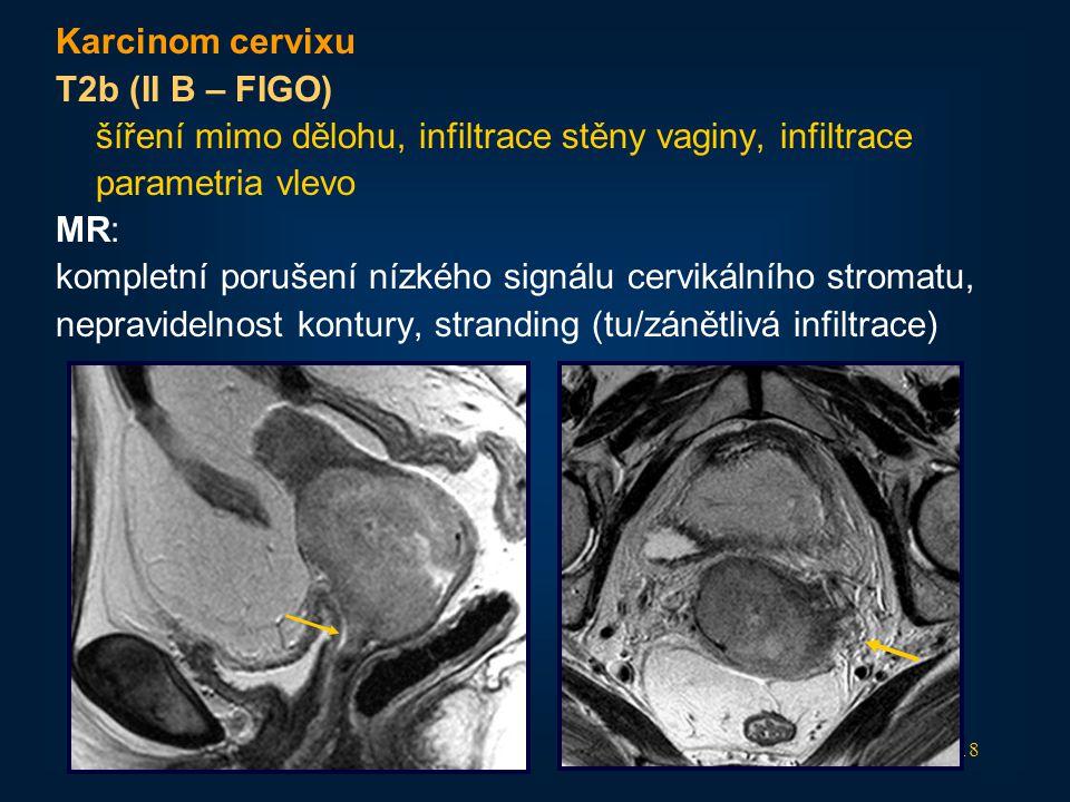 Karcinom cervixu T2b (II B – FIGO) šíření mimo dělohu, infiltrace stěny vaginy, infiltrace. parametria vlevo.