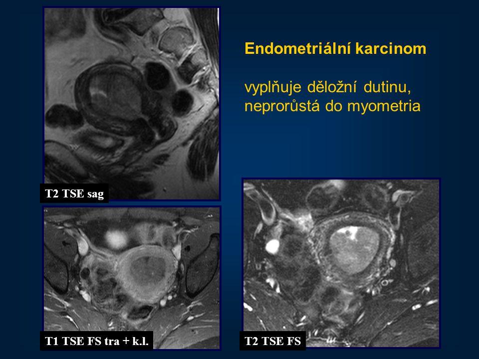 Endometriální karcinom vyplňuje děložní dutinu,