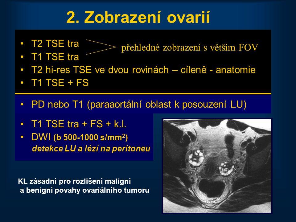 2. Zobrazení ovarií T2 TSE tra T1 TSE tra