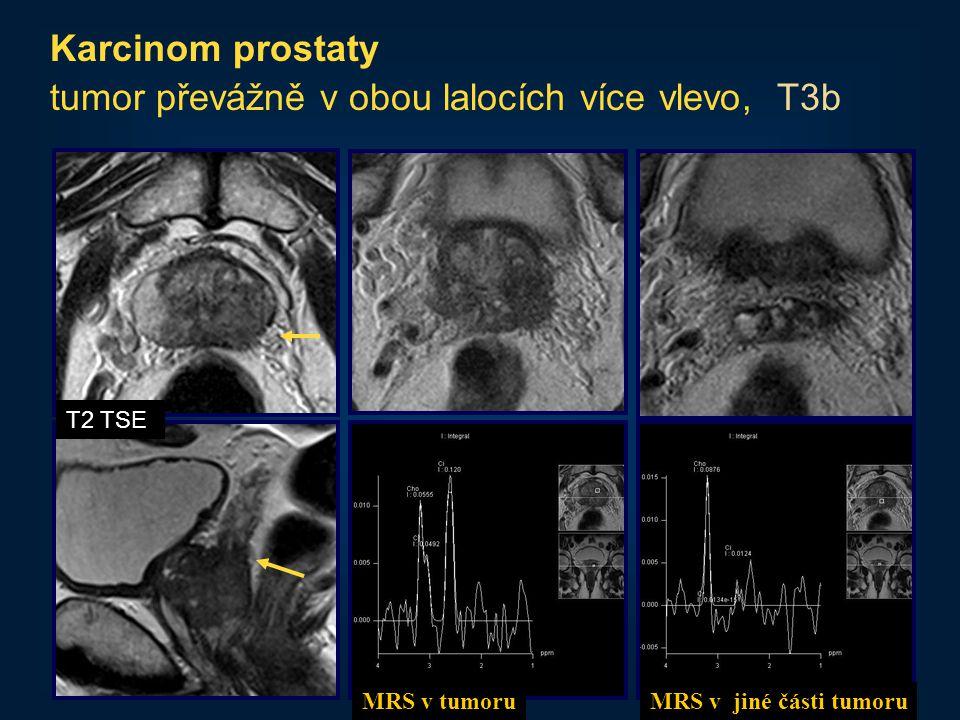 tumor převážně v obou lalocích více vlevo, T3b