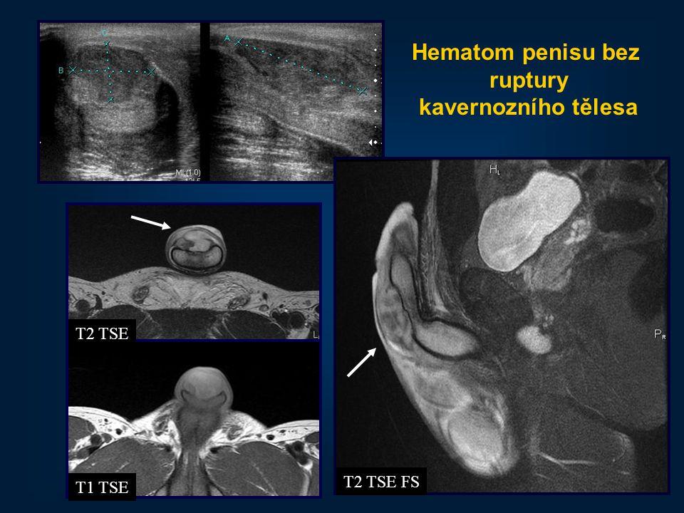 Hematom penisu bez ruptury kavernozního tělesa