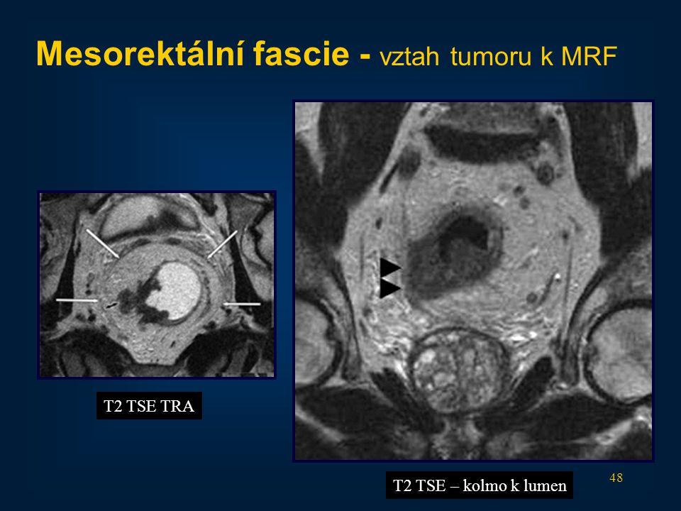 Mesorektální fascie - vztah tumoru k MRF
