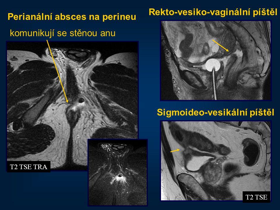 Rekto-vesiko-vaginální píštěl Perianální absces na perineu