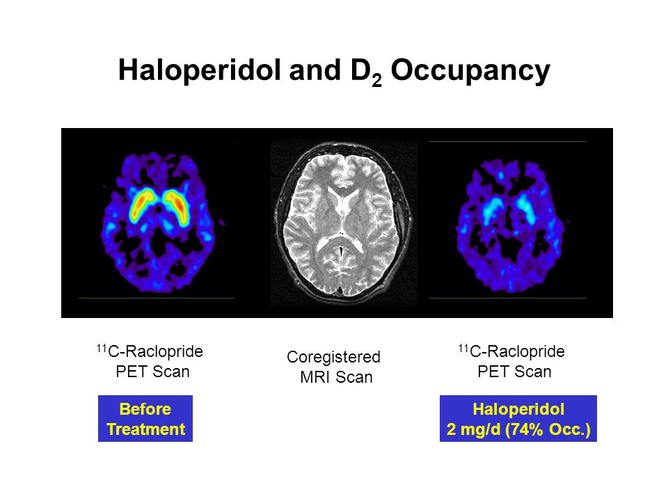 Haloperidol and D2 Occupancy