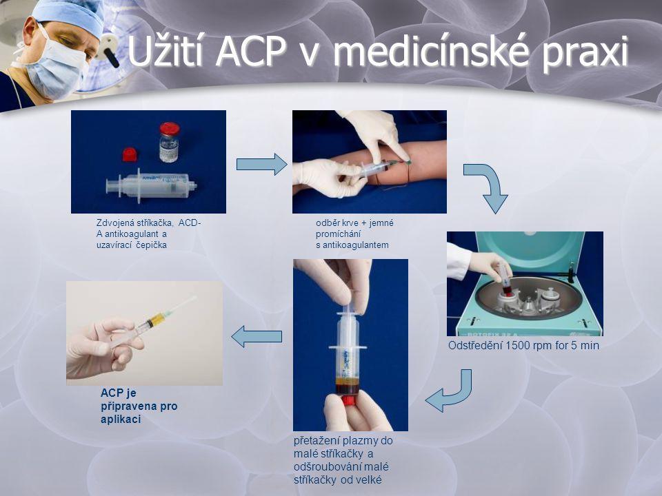 Užití ACP v medicínské praxi