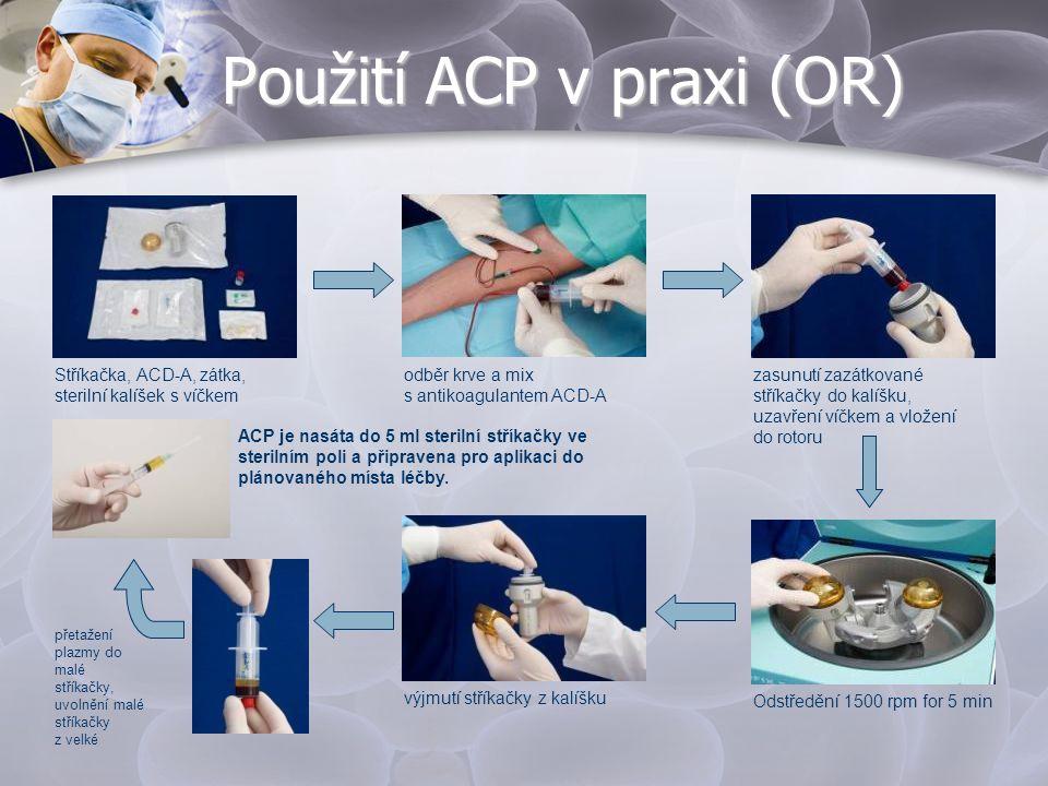 Použití ACP v praxi (OR)