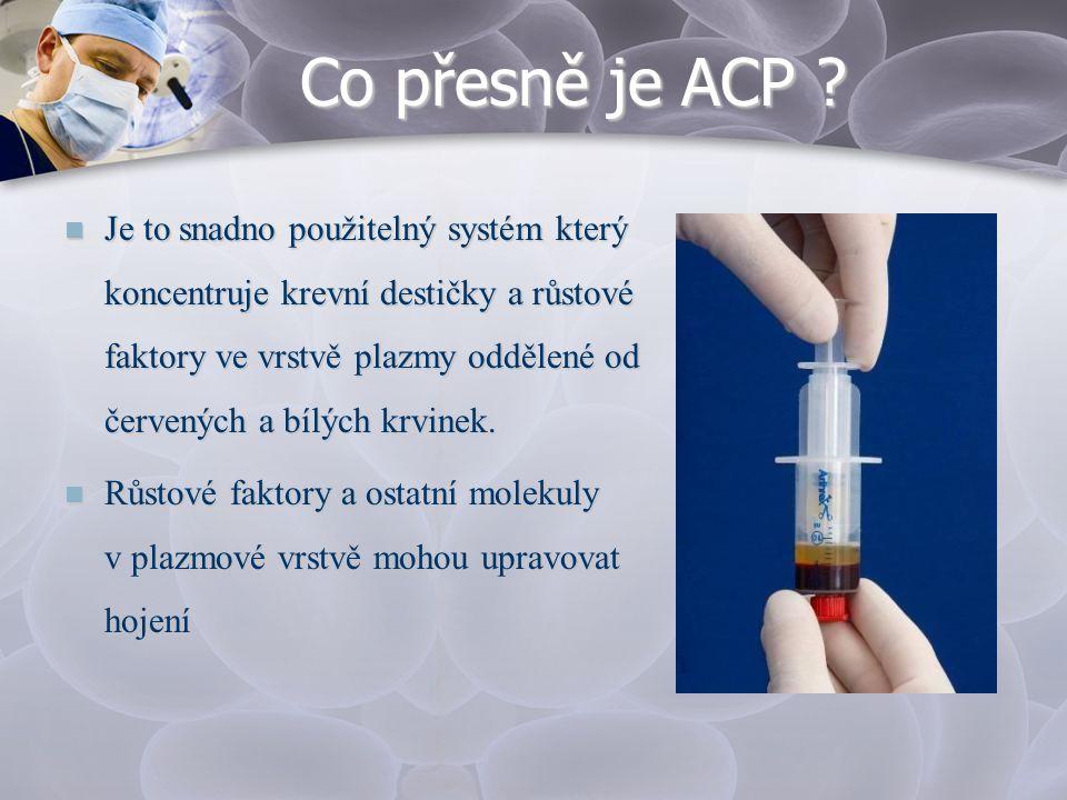 Co přesně je ACP