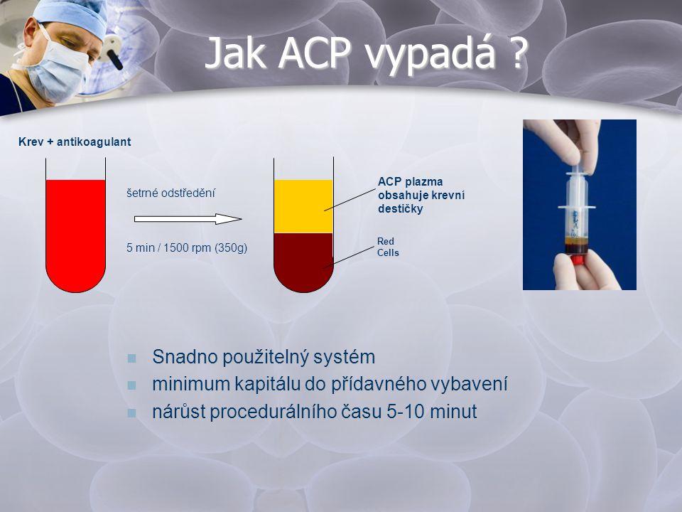 Jak ACP vypadá Snadno použitelný systém