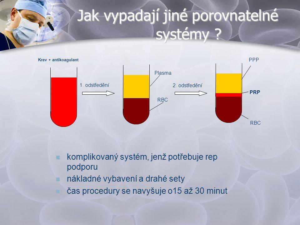 Jak vypadají jiné porovnatelné systémy