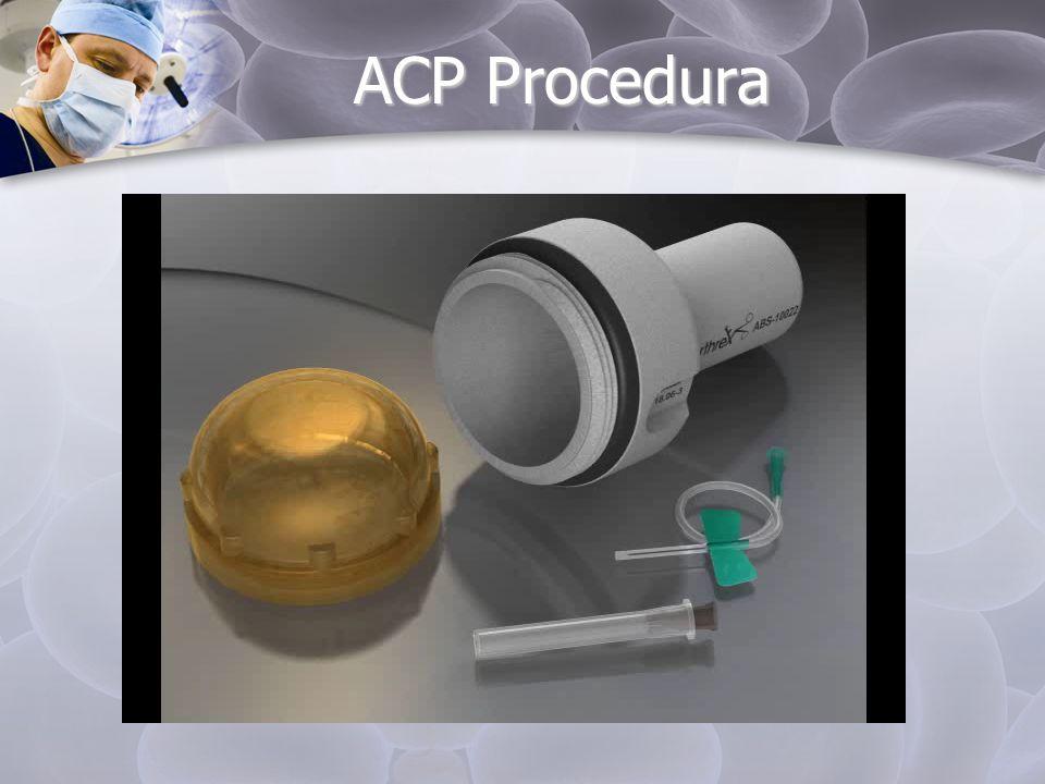 ACP Procedura