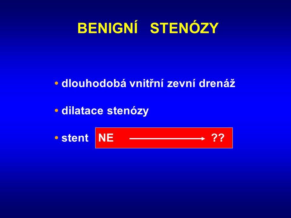 BENIGNÍ STENÓZY • dlouhodobá vnitřní zevní drenáž • dilatace stenózy