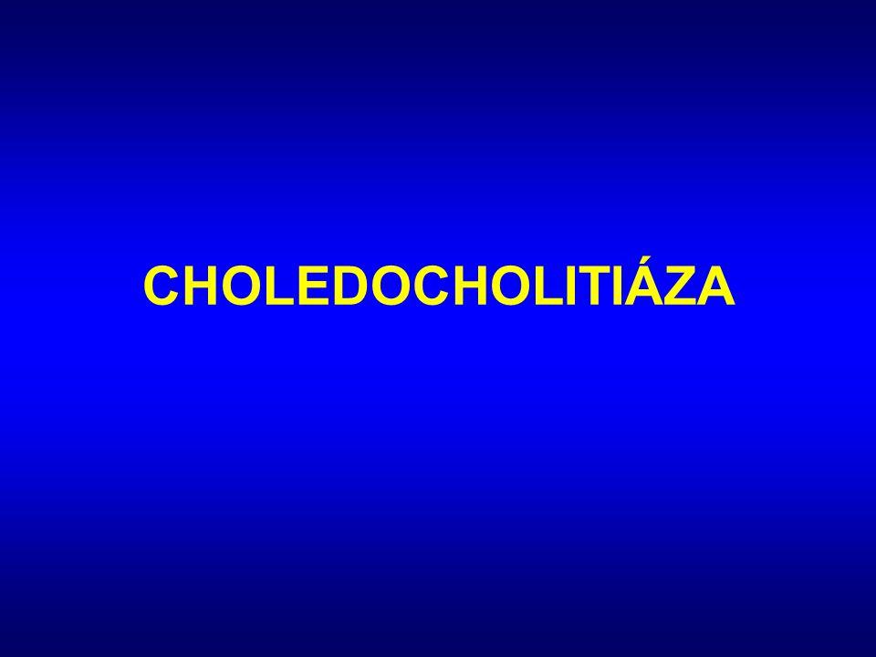 CHOLEDOCHOLITIÁZA