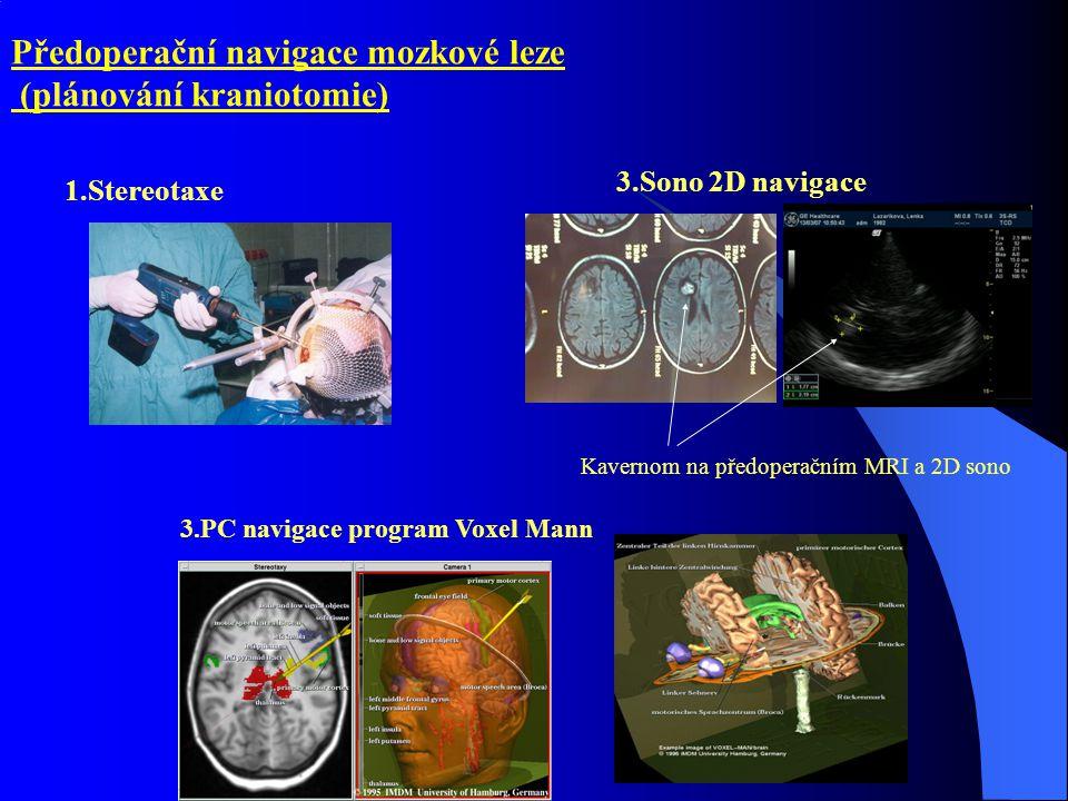 Předoperační navigace mozkové leze (plánování kraniotomie)