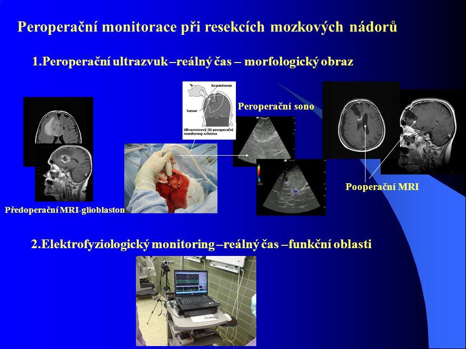 Peroperační monitorace při resekcích mozkových nádorů