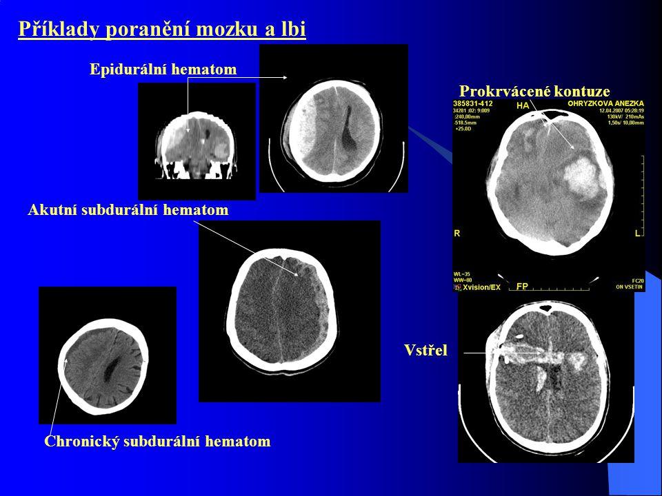 Příklady poranění mozku a lbi